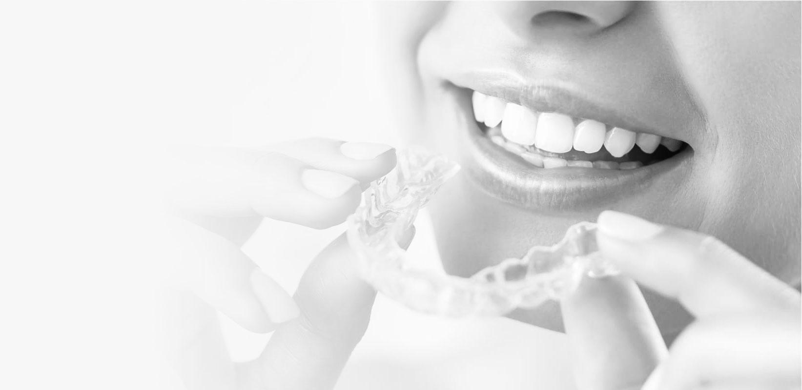 clinica de ortodoncia invisalign en madrid