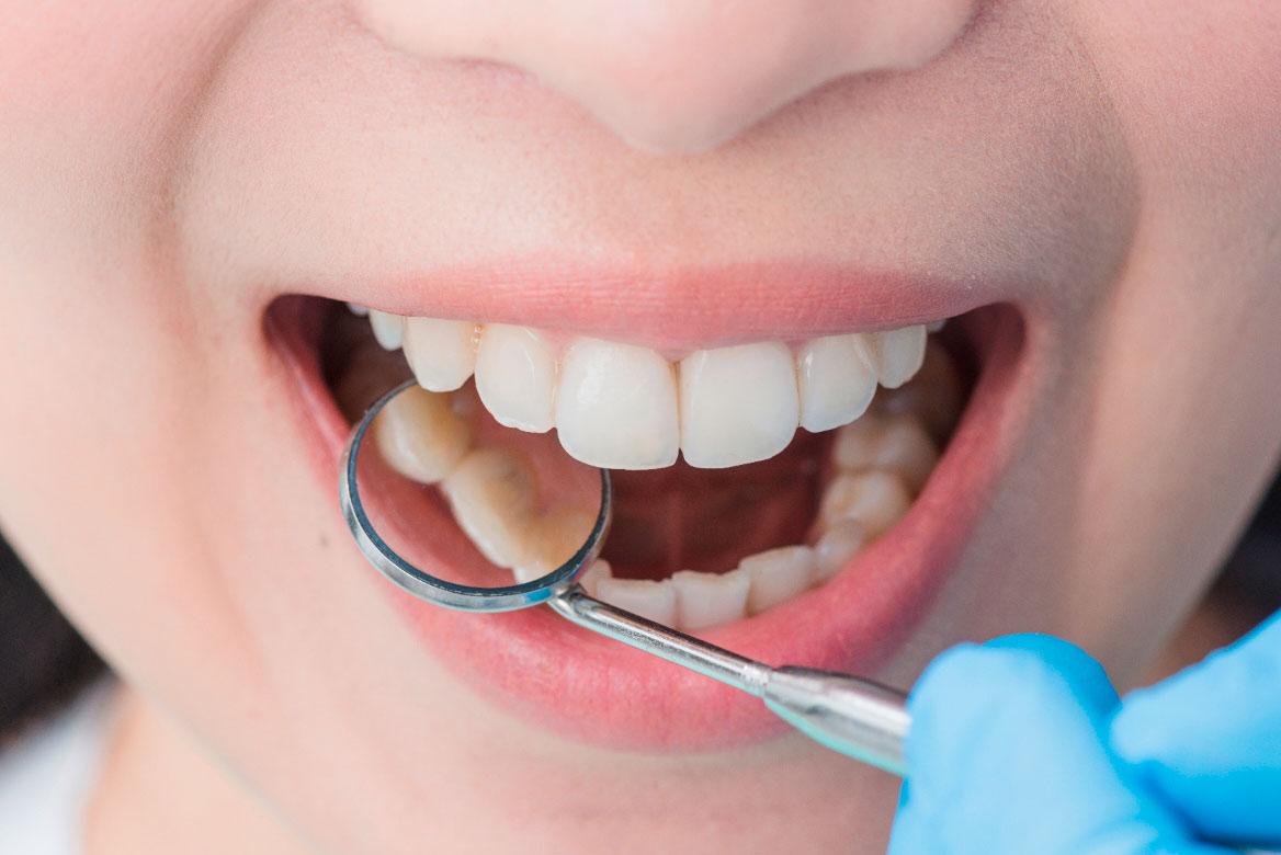 mujer ortodoncia en madrid