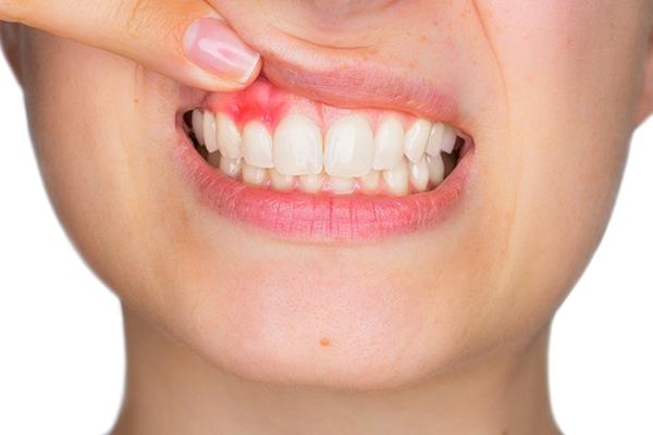 tratar la periodoncia en madrid