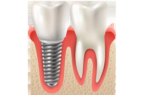 implante dental en madrid