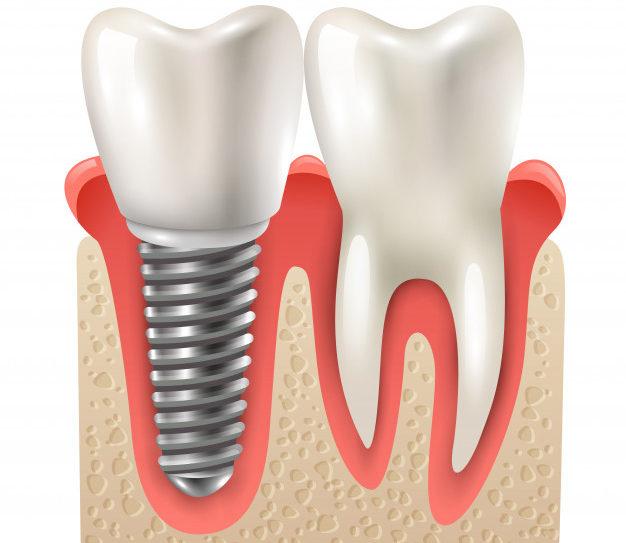 Implantes dentales, qué son y cómo pueden ayudarte