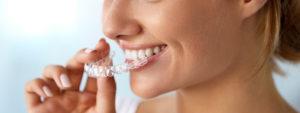 beneficios de la ortodoncia invisalign