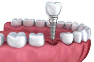 implantes dentales en madrid capital