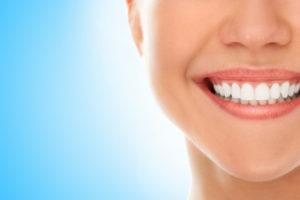 Después de la odontología estética