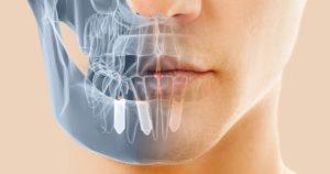 Ortodoncia Invisible AC implantología