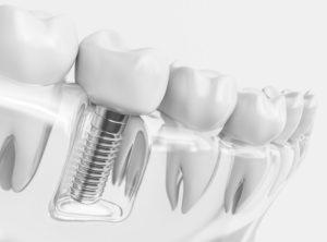Ortodoncicia Invisible AC Implantología