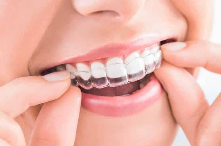 ¿Qué procedimiento es mejor, brackets u ortodoncia invisalign?