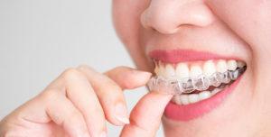 protege tu ortodoncia invisalign