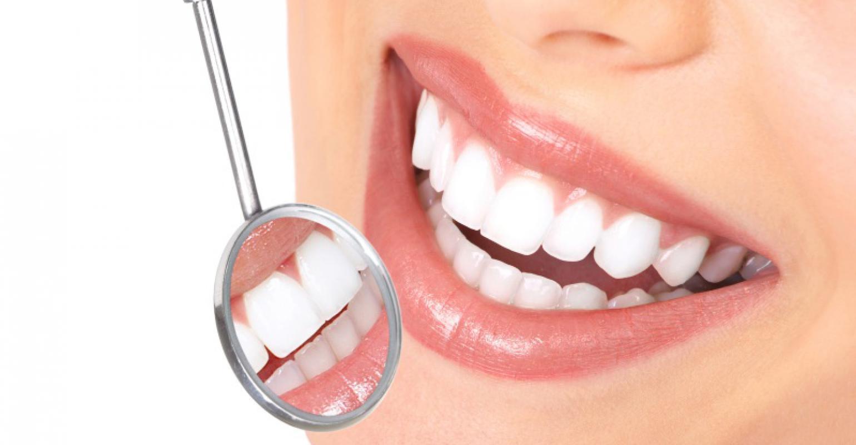 Odontología Estética para lucir la mejor sonrisa