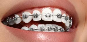 brackets metalicos