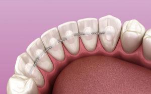 dientes después de la ortodoncia cuidado con retenedores fijos