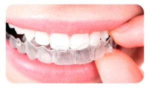 dientes después de la ortodoncia cuidado con retenedores removibles transparentes tipo quita y pon