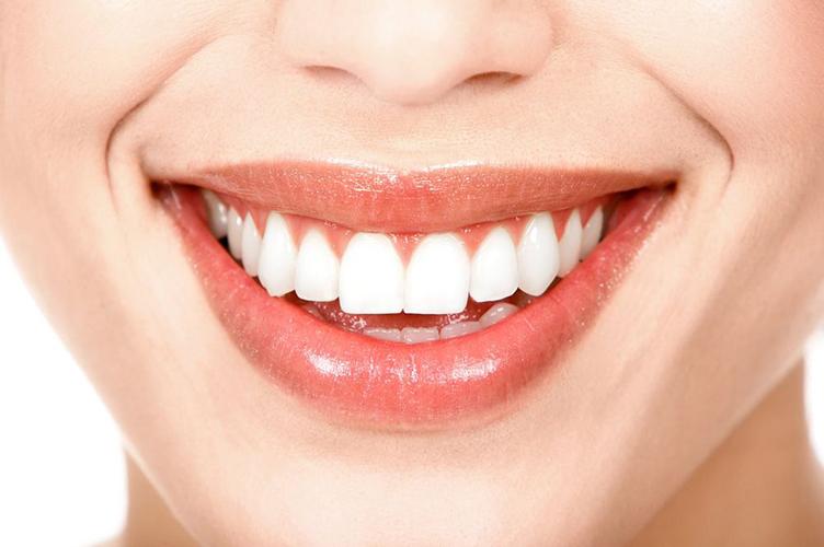 Dientes después de la ortodoncia