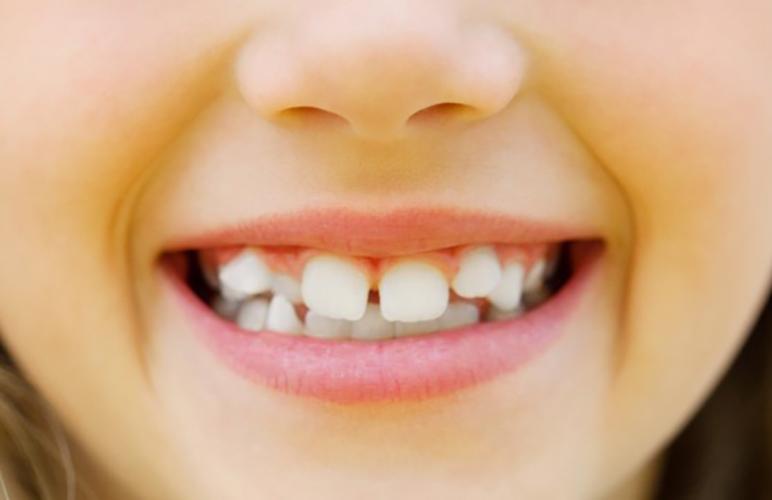 La ortodoncia infantil ayuda a prevenir problemas futuros en la salud bucodental del niño