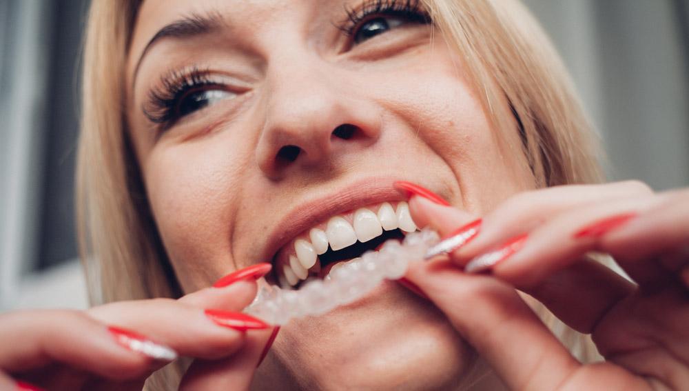 Apiñamiento dental: antes y después con Invisaling