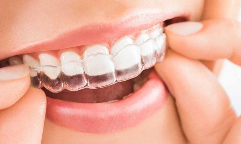 ortodoncia invisible antes y despues invisalign