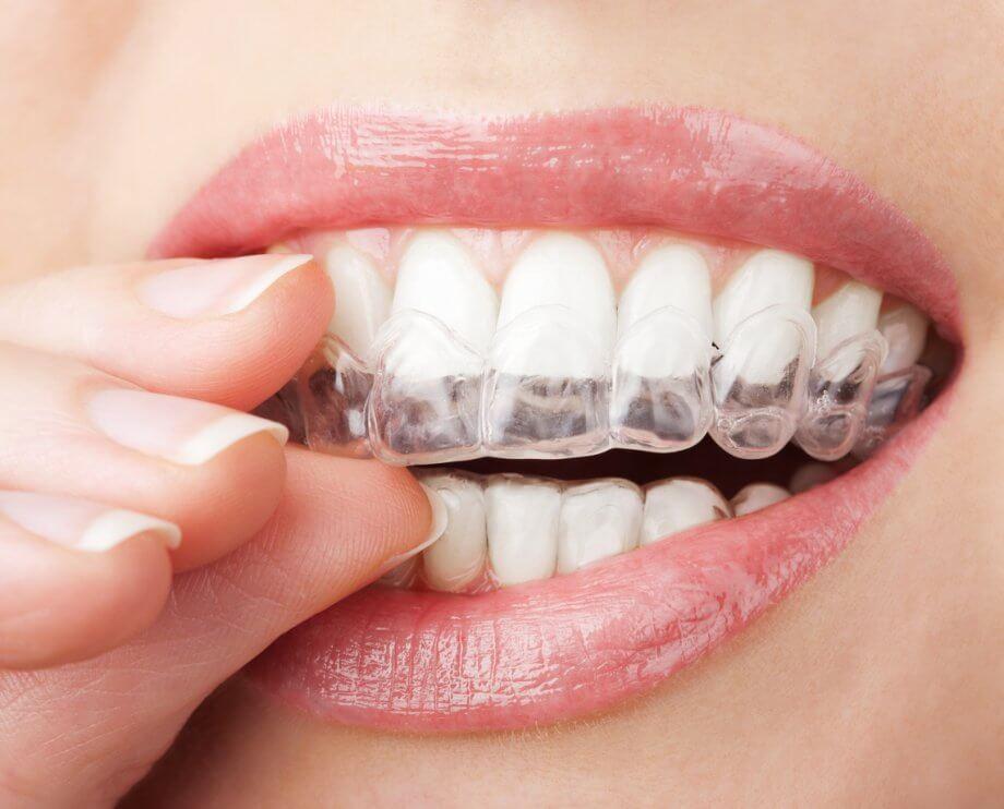 Ortodoncia Invisible: antes y después de arcadas comprimidas