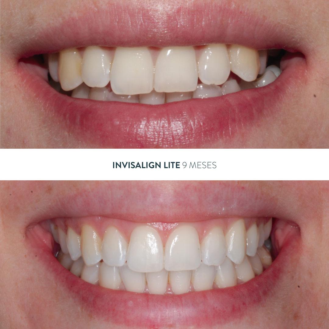 antes y después de arcadas comprimidas con un tratamiento de Invisalign