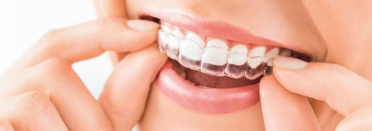ortodoncia invisible sonrisa perfecta invisalign