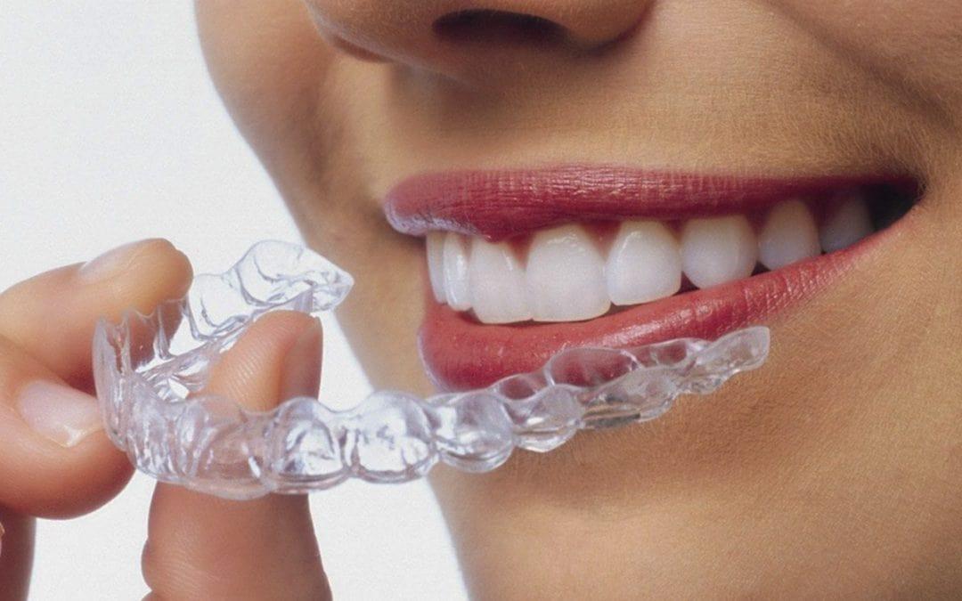 Principales beneficios de elegir ortodoncia invisible