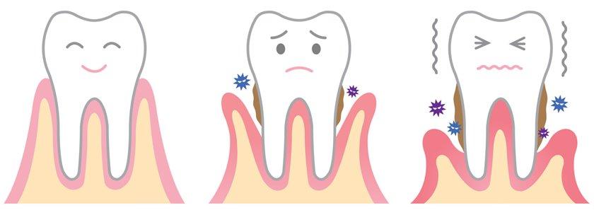 fases de la periodoncia
