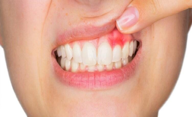 La periodoncia o enfermedad periodontal