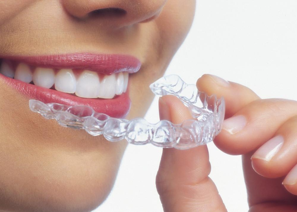 Ortodoncia Invisible: Preguntas frecuentes sobre Invisalign