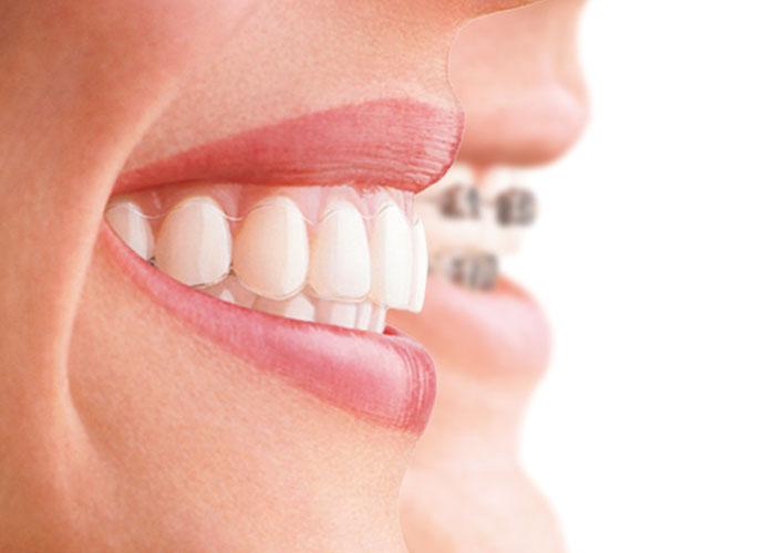 ortodoncia invisible brackets