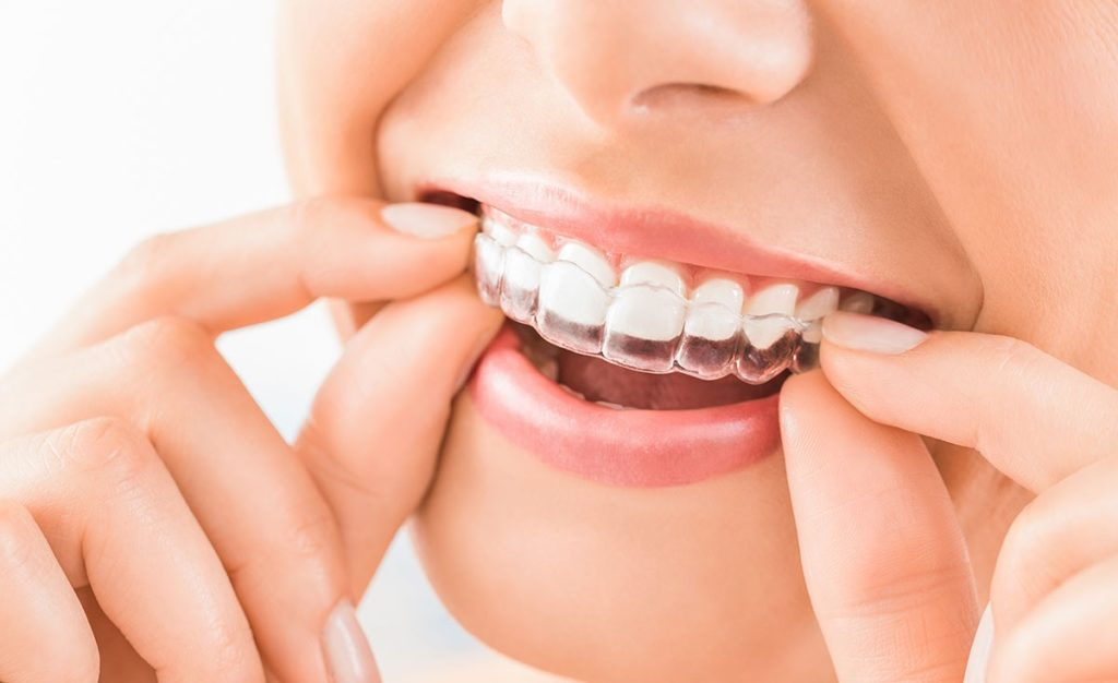 ortodoncia invisible ventajas
