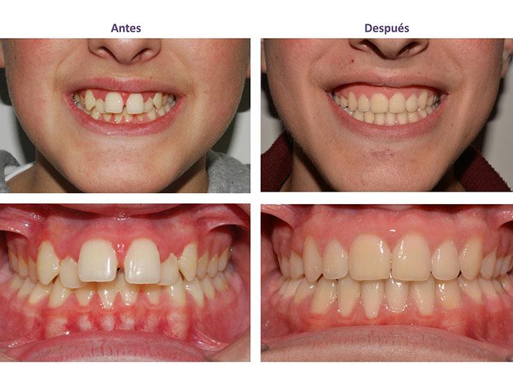Antes y después de la diastema