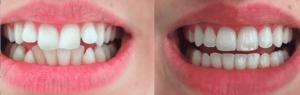 Extracción muelas del juicio. Ortodoncia Invisible
