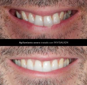 ortodoncia invisible maloclusión