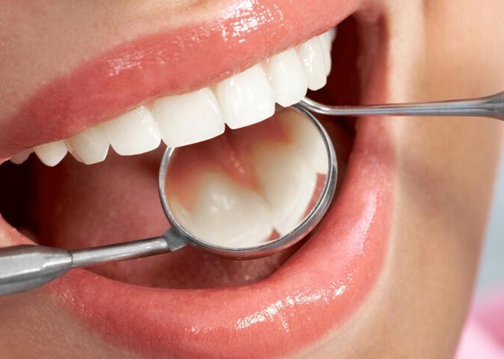 Ortodoncia invisible: Tratamiento de profilaxis dental