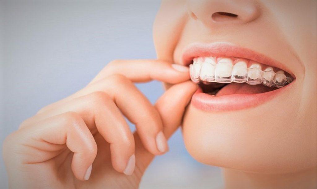 Ortodoncia Invisible: ¿Cuál es el mejor momento del año para hacérsela?