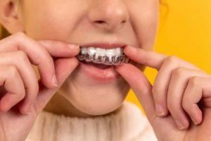 ortodoncia invisible niños